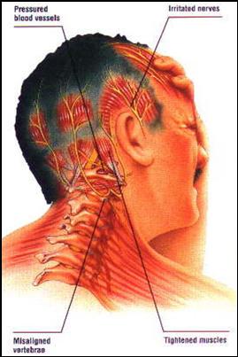sciatic nerve pain, Valrico, FL