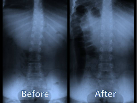 Current chiropractic Fibromyalgia